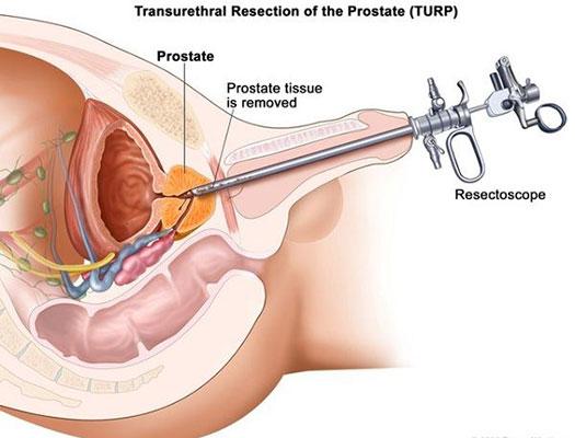 Cắt u xơ tuyến tiền liệt qua niệu đạo(TURP) 1