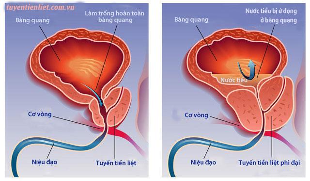 Các giai đoạn phát triển u xơ tuyến tiền liệt 1