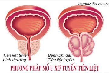 Phương pháp mổ u xơ tuyến tiền liệt