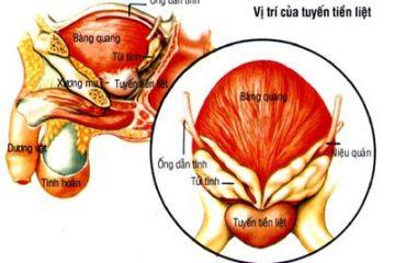3 giai đoạn phát triển của u xơ tuyến tiền liệt