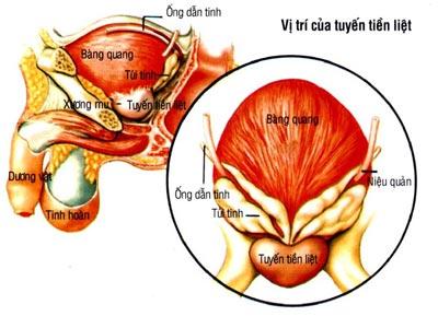 3 giai đoạn phát triển của u xơ tuyến tiền liệt 1