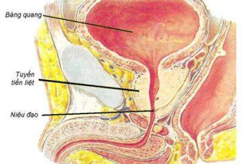 Thế nào là bệnh u xơ tuyến tiền liệt?