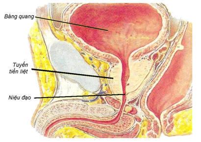 Thế nào là bệnh u xơ tuyến tiền liệt? 1