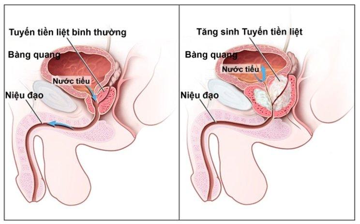 Nguyên nhân phì đại tuyến tiền liệt và cách điều trị 1
