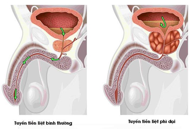 2. Tín hiệu của bệnhphì đại tuyến tiền liệt 1