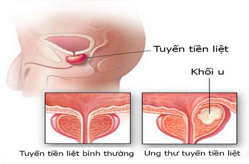 Nguyên nhân gây ung thư tuyến tiền liệt 1