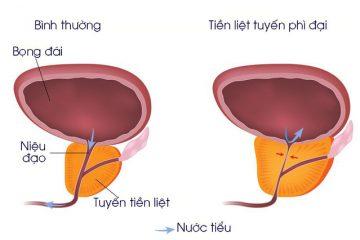 Những triệu chứng hay gặp phải của bệnh phì đại tiền liệt tuyến