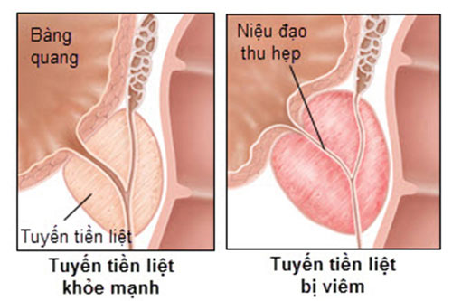 Dấu hiệu bệnh viêm tuyến tiền liệt 1