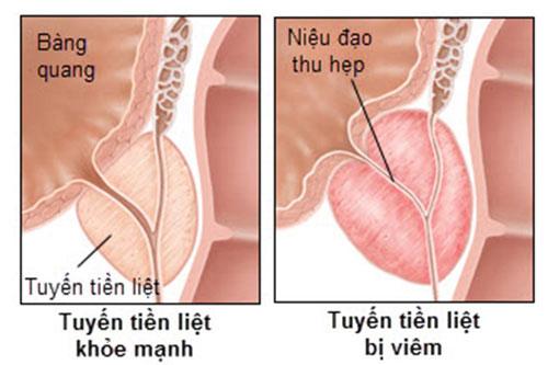 Các bệnh về tuyến tiền liệt là gì? 1