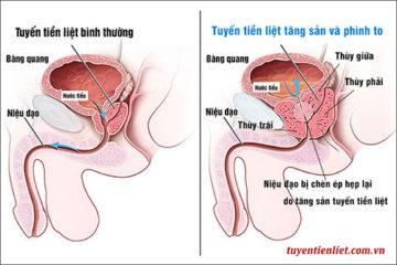 Tăng sản tuyến tiền liệt là gì? Cách chẩn đoán và điều trị