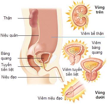 Các biến chứng nguy hiểm của u xơ tiền liệt tuyến 1