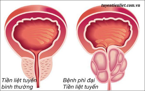 Bệnh lý về tuyến tiền liệt ở nam giới 1