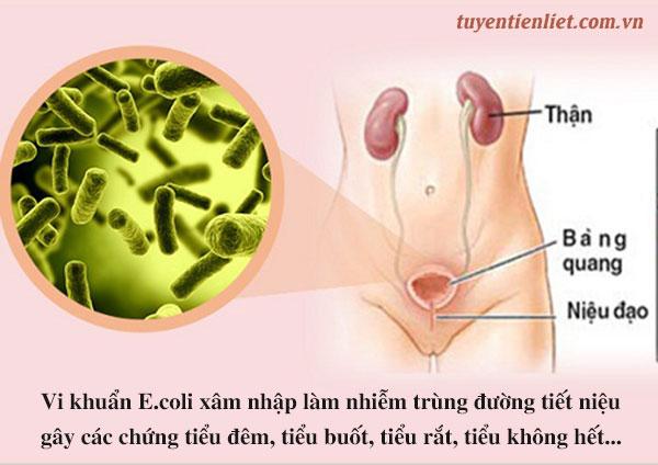 Những biến chứng của phì đại tuyến tiền liệt 1