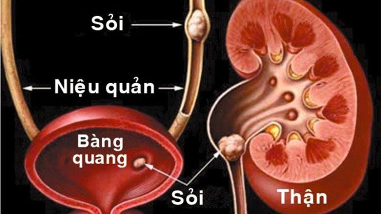 Nguyên nhân nào gây ra bí tiểu? 1