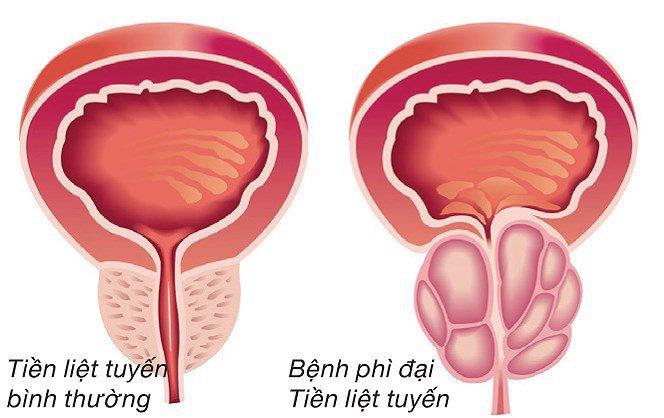 Thế nào là u xơ tuyến tiền liệt? 1