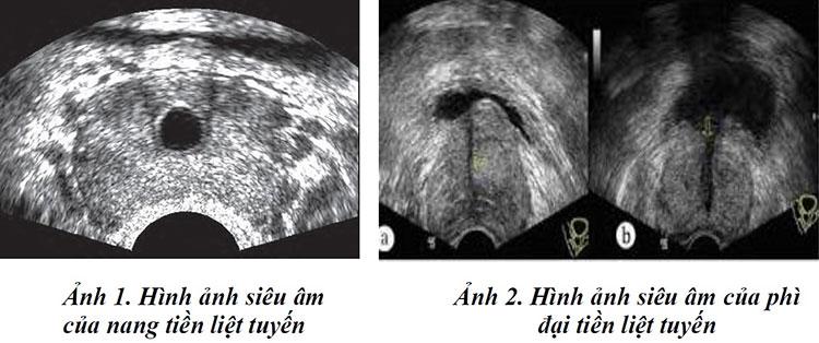 Hình ảnh tuyến tiền liệt bình thường và tuyến tiền liệt phì đại 3