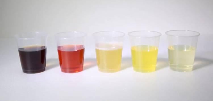 3.Màu của nước tiểu 1