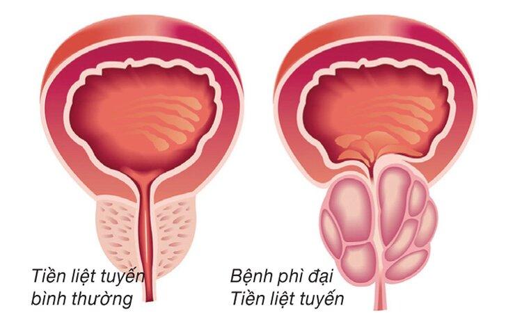 U xơ tuyến tiền liệt 1