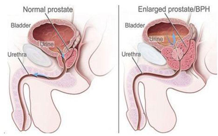 Tăng sinh lành tính tuyến tiền liệt là gì? 1