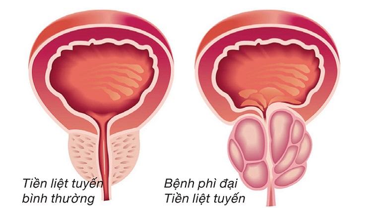 Đi tiểu nhiều lần có thể là dấu hiệu của nhiều căn bệnh nguy hiểm 1