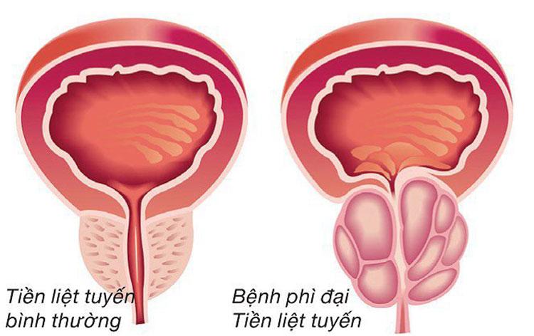 Tiểu ra máu do bệnh lý gây nguy hiểm 1