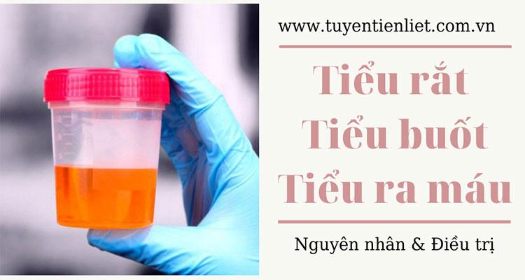 Tiểu rắt tiểu buốt tiểu ra máu: Nguyên nhân & điều trị 1