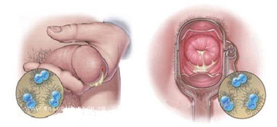Bệnh lây qua đường tình dục (STI) 1