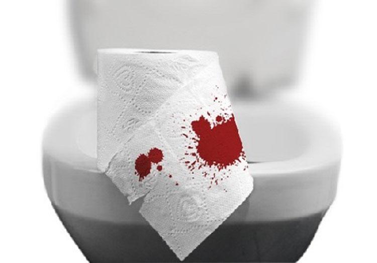 Thế nào là tiểu són ra máu? 1