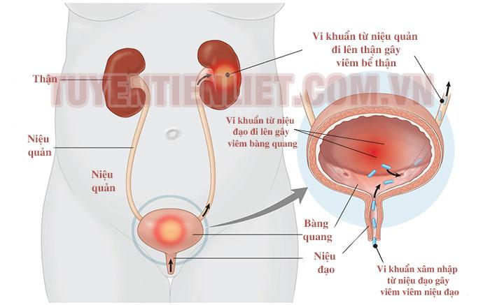 Nhiễm trùng đường tiết niệu 1