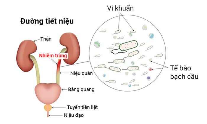 Nhiễm trùng đường tiết niệu (UTIs) 1