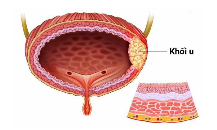 Ung thư bàng quang 1
