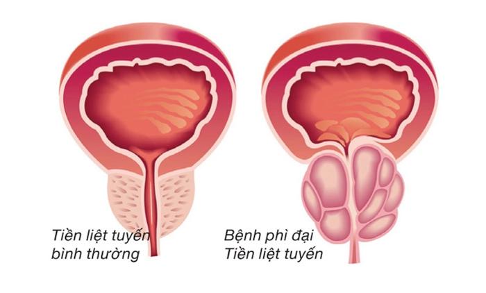 Tăng sản tuyến tiền liệt 1