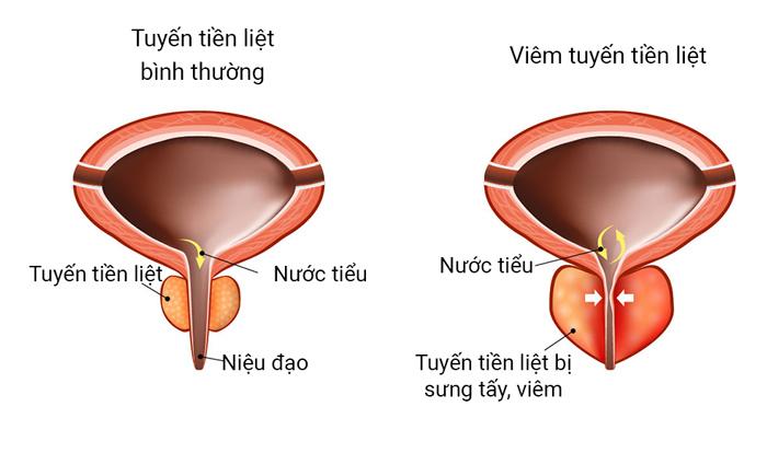 Viêm tuyến tiền liệt 1